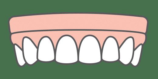 Snap-in-Dentures